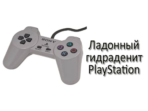 2. Ладонный гидраденит PlayStation (PlayStation palmar hidradenitis)